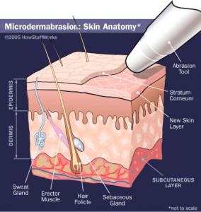 Microdermabrasion Gilbert