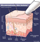 microdermabrasion-thumb